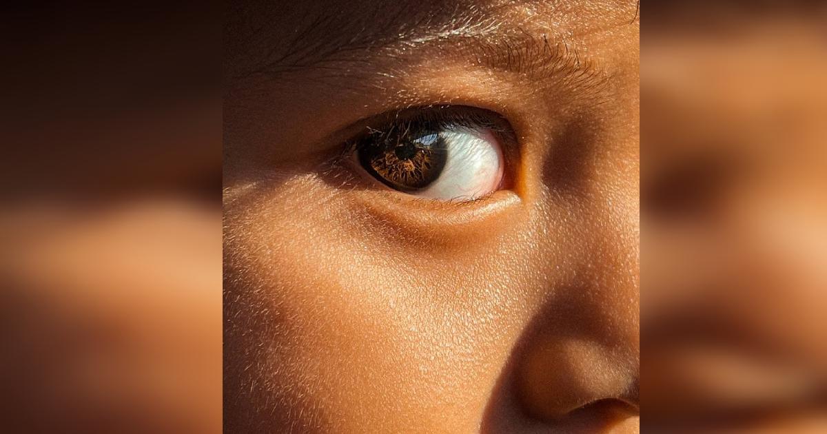 Gambar mata kanan Luth Fateh diiktiraf Apple